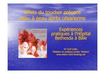 Effets du toucher précoce peau à peau après césarienne
