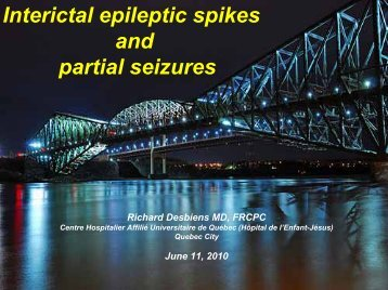 Interictal Epileptic Spikes and Partial Seizures