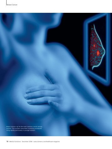 Breast Cancer - Siemens Healthcare