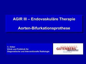 Aorten-Bifurkationsprothese