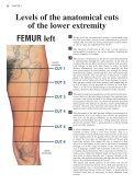 FEMUR left - Page 3