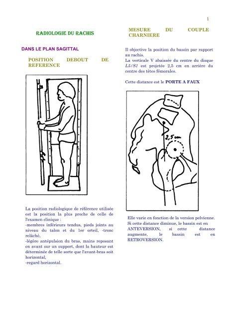 LES TUMEURS OSSEUSES CHEZ L'ENFANT