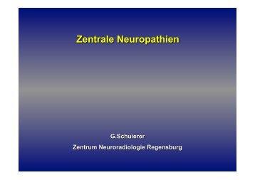 Prof. Dr. med. Gerhard Schuierer Zentrale Neuropathien!