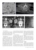 Abdominal aort anevrizmalarının endovasküler tamirini takiben ... - Page 4