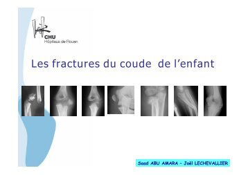 Les fractures du coude de l'enfant - CHU de Rouen