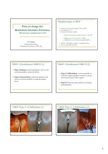 histologie de l 39 appareil genital feminin epathologies. Black Bedroom Furniture Sets. Home Design Ideas
