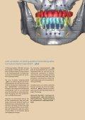 Implantatprothetik - plus - Page 5