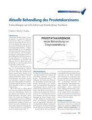 Aktuelle Behandlung des Prostatakarzinoms