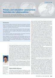 Primäre und sekundäre Lebertumore: Techniken der Leberresektion ...