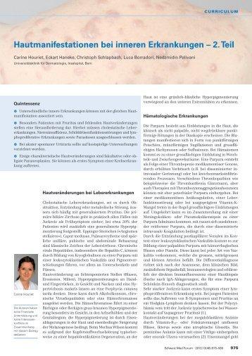 Hautmanifestationen bei inneren Erkrankungen – 2. Teil - Swiss ...