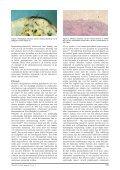 'Tumor-to-tumor metastasis' van een cecaal adenocarcinoom naar ... - Page 2