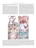 Pathology of tissue loss - National Wildlife Health Center - USGS - Page 3