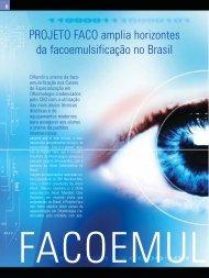 PROJETO FACO amplia horizontes da facoemulsificação no Brasil
