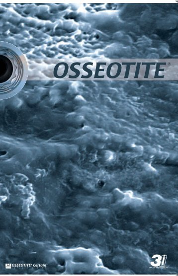 Osseotite Certain - Odontoiatria Galeazzi Milano
