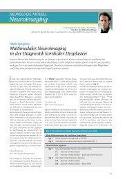 Multimodales Neuroimaging in der Diagnostik kortikaler Dysplasien