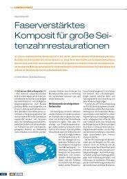 Faserverstärktes Komposit für große Sei ... - Oemus Media AG