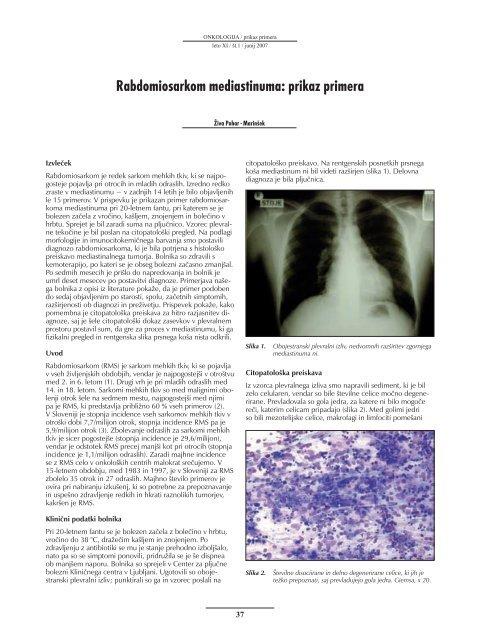 Rabdomiosarkom mediastinuma: prikaz primera - Onkološki inštitut