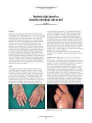 Neželeni učinki zdravil za sistemsko zdravljenje raka na koži (.pdf ...