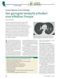 Invasive Mykosen in der Onkologie