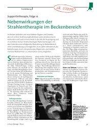 Nebenwirkungen der Strahlentherapie im Becken
