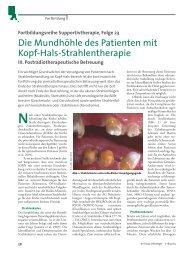 Die Mundhöhle des Patienten mit Kopf-Hals-Strahlentherapie
