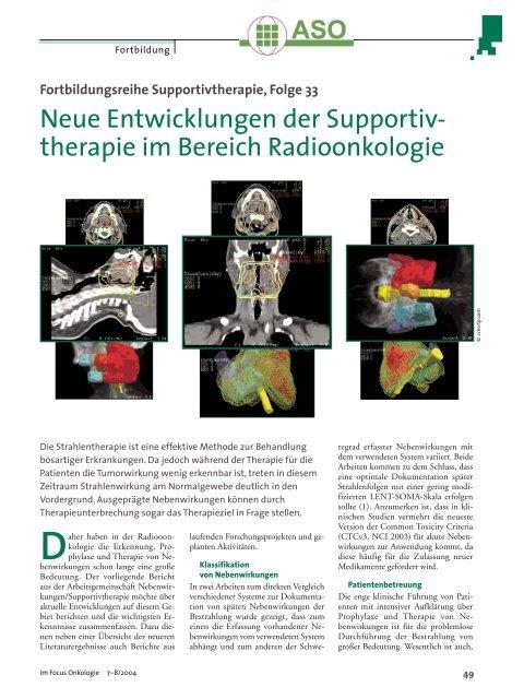 Neue Entwicklungen der Supportiv- therapie im Bereich ...