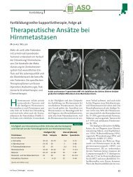 Therapeutische Ansätze bei Hirnmetastasen
