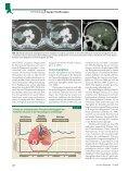 Invasive Mykosen in der Onkologie - Page 2