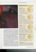Lichtblick dank Linse und Laser - OperationAuge - Seite 2