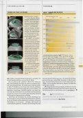 Lichtblick dank Linse und Laser - OperationAuge - Seite 6