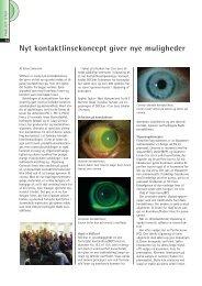 Nyt kontaktlinsekoncept giver nye muligheder