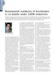 Biomekanisk svækkelse af hornhinden er en bombe under LASIK ...