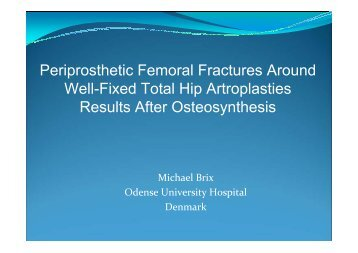 Periprosthetic Femoral Fractures Around Well-Fixed Total Hip ...
