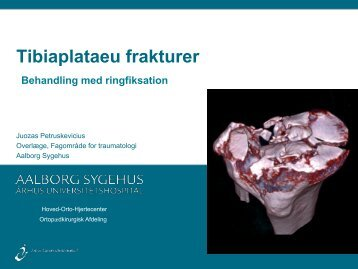 Ringfiksation af tibiaplataeu frakturer