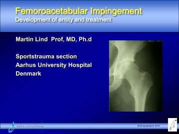 Hip arthroscopy and FAI