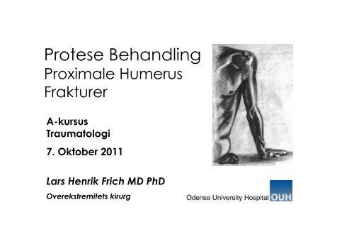 f71d1bc9587 Protese Behandling - Dansk Ortopædisk Selskab