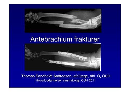 Antebrachium frakturer