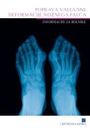 Poprava valgusne deformacije nožnega palca - Ortopedska klinika ...