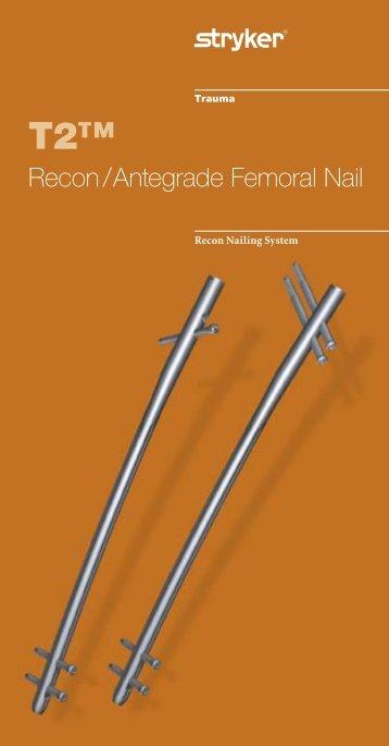 Recon / Antegrade Femoral Nail - Stryker