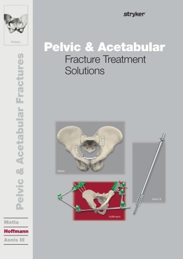 Pelvic & Acetabular Fracture Treatment Solutions - Stryker