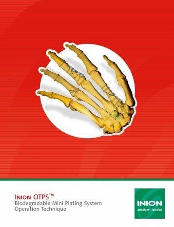 Inion OTPS™ - Stryker