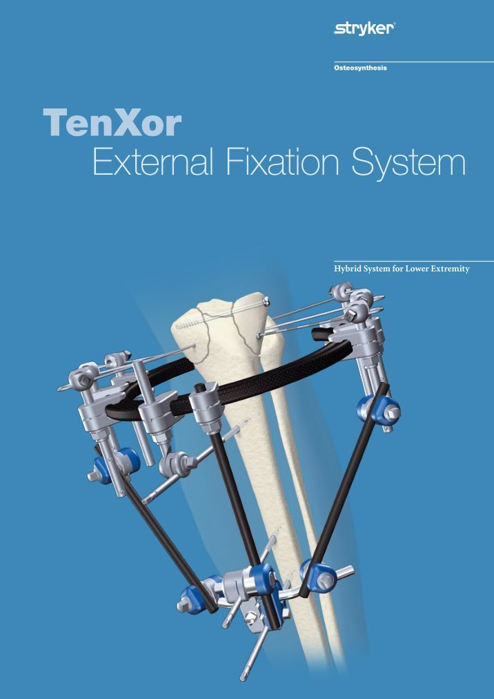stryker osteosynthesis email Have a question talk to a specialist call 1-800-739-7706 contact us now.