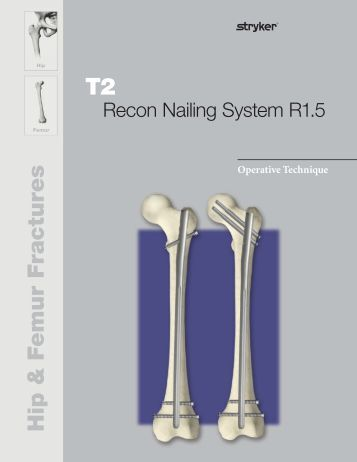 osteosynthesis stryker recon nail The t2 recon nail is the latest development for the treatment of proximal hip and diaphyseal femoral fractures.