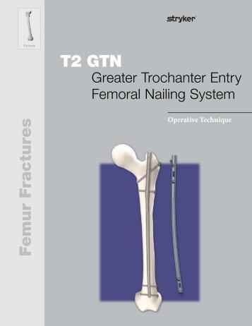 T2 GTN Operative Technique - Stryker