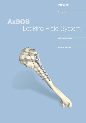 AxSOS Proximal Humerus Operative Technique - Stryker