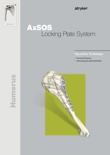 osteosynthesis techniques in proximal humeral fractures Humeral shaft fractures, plate osteosynthesis is  humeral shaft fractures with proximal extension  tips and techniques- distal humerus j scolaro et al.