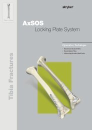 AxSOS Distal Tibia Alternating treaded shaft holes Operative - Stryker
