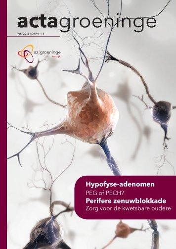 Hypofyse-adenomen Perifere zenuwblokkade - AZ Groeninge
