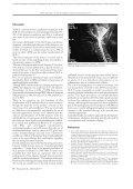 Transverse Myelitis in Systemic Lupus Erythematosus - panlar - Page 4