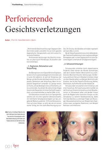 Perforierende Gesichtsverletzungen - Park Klinik Weißensee